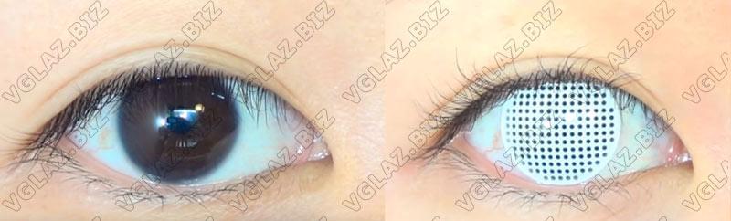 белые линзыв без зрачков на карих глазах фото до и после