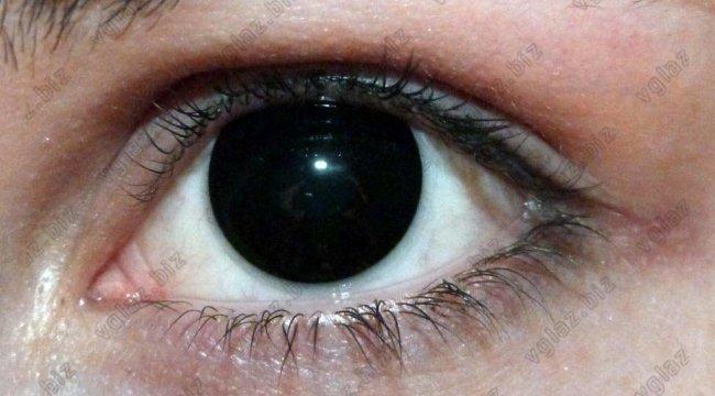 Клиника федорова сколько стоит коррекция зрения
